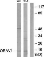 Western blot analysis of extracts from 293 cells and HeLa cells using ORAOV1 antibody