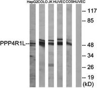 Western blot analysis of extracts from HepG2 cells, COLO cells, Jurkat cells, HUVEC cells and COS cells using PPP4R1L antibody